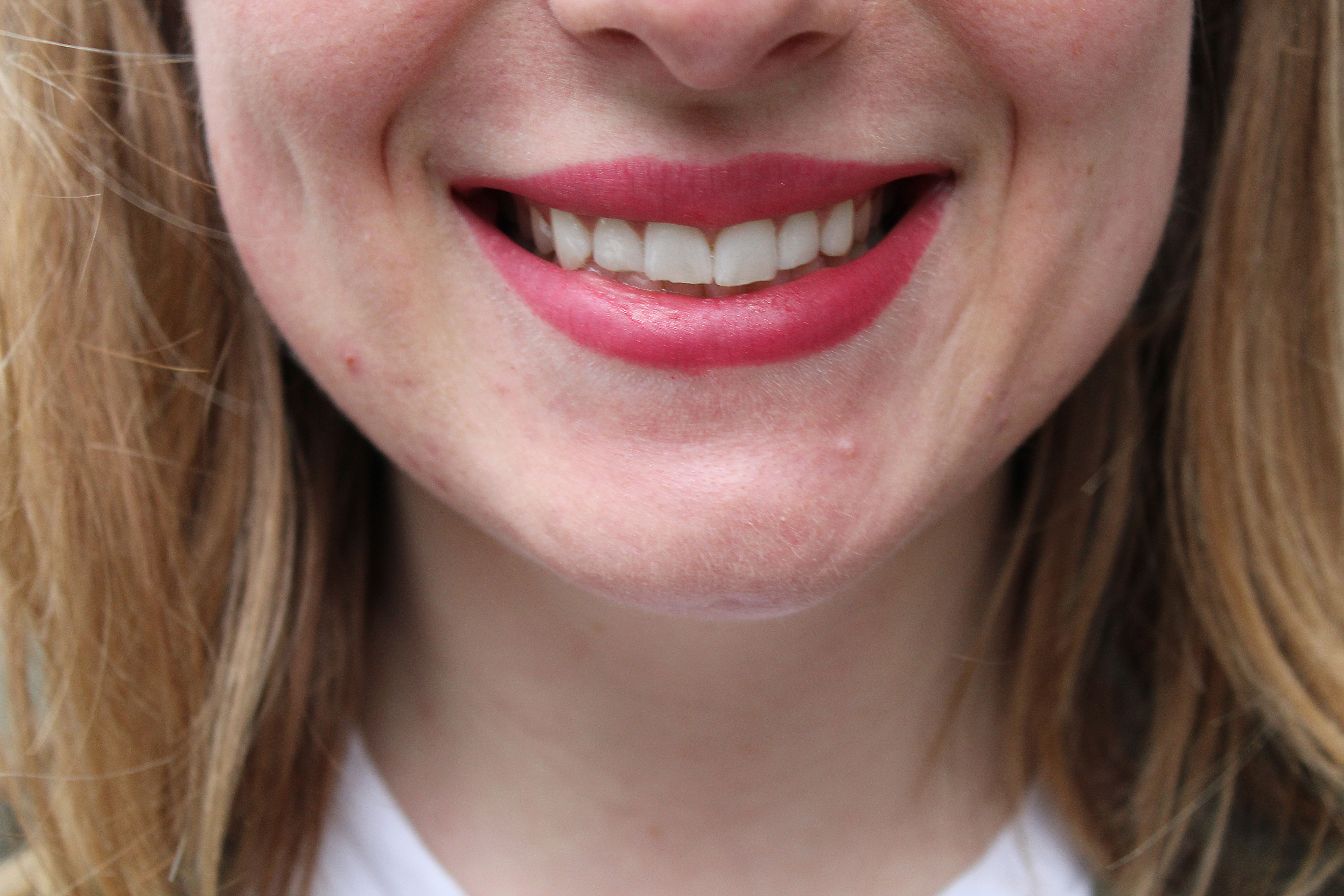 best teeth whitening smile brilliant